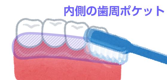 歯周ポケット_内側