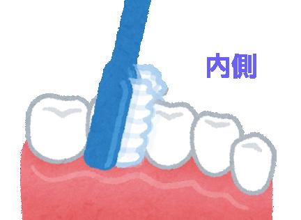 歯間_内側