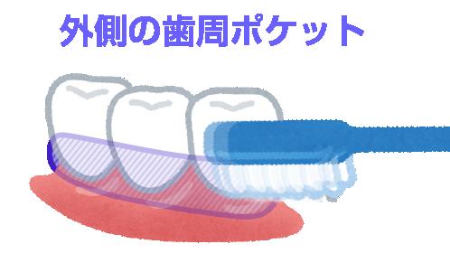 歯周ポケット_外側