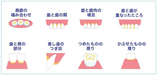 虫歯になりやすい部分